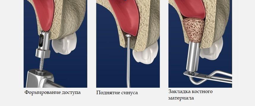 Этапы проведения процедуры закрытого синус-лифтинга