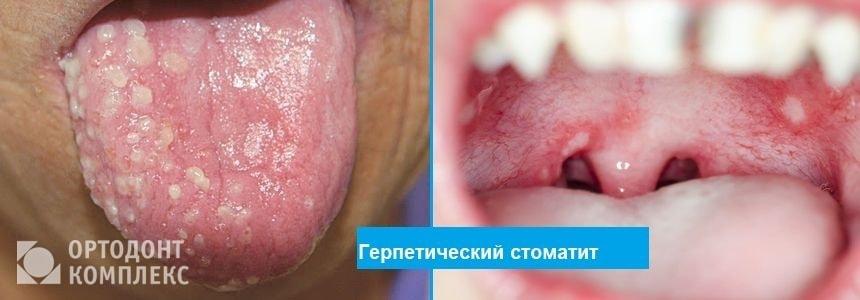 Герпетический стоматит