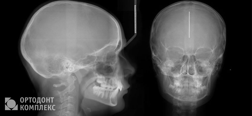 Результат ТРГ зуба