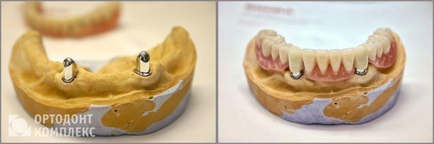 Телескопические протезы на зубах
