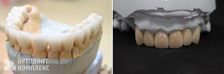 Цельнокерамические коронки на зубы