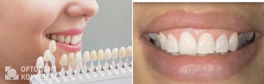 Коронка E-max на фронтальных зубах