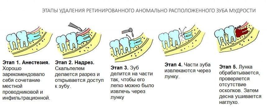 Этапы сложного удаления зубов мудрости