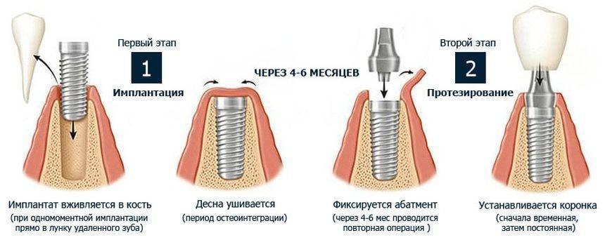 Двухэтапная методика имплантации
