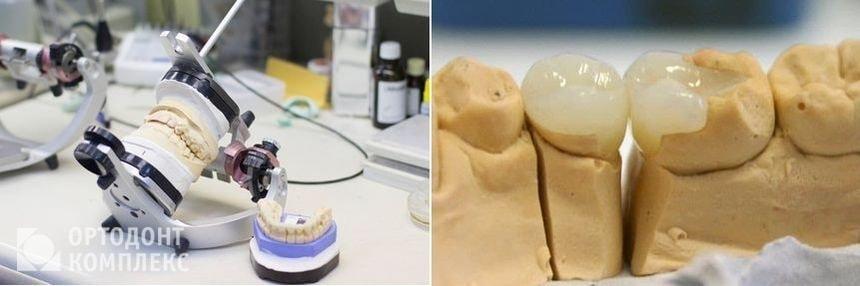 Изготовление и установка вкладок на зубы