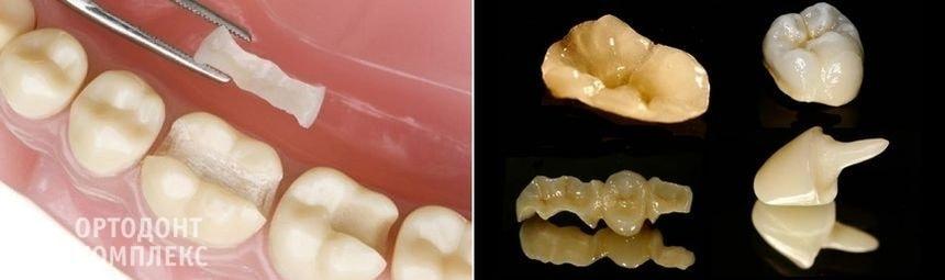 Восстановительные и культевые вкладки на зубы