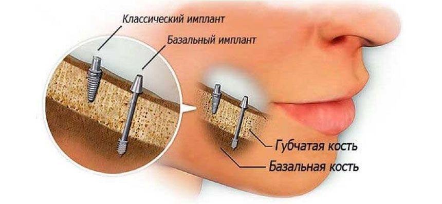 Отличия классической и базальной имплантации