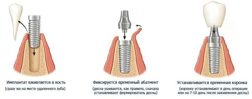 Одномоментная имплантация