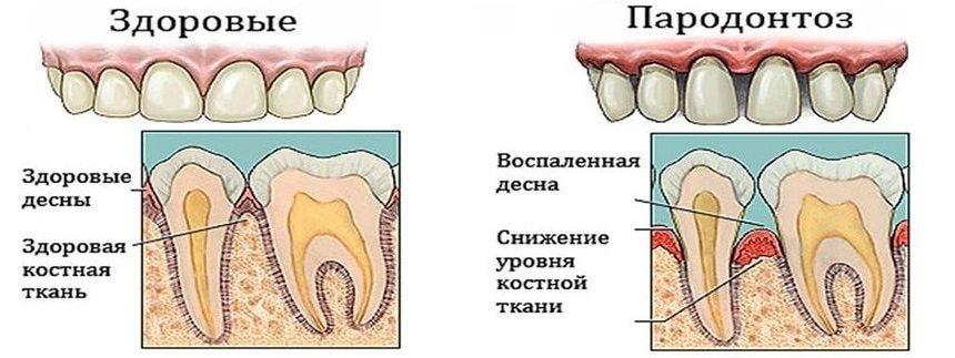 Пародонтоз зуба