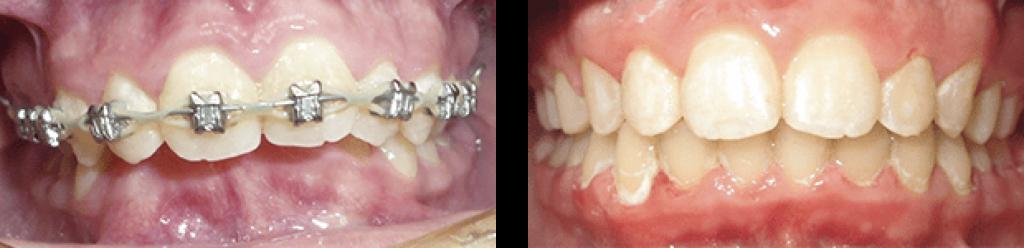 Металлические брекеты - фото до и после
