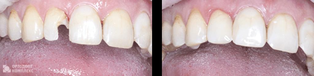Художественная реставрация резца - фото до и после
