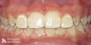 Как правильно подкручивать пластинку для зубов у детей для исправления прикуса?