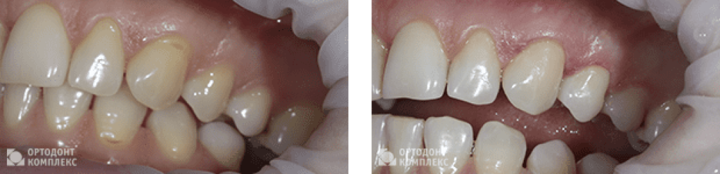 Photo before and after treatment of a wedge-shaped defect