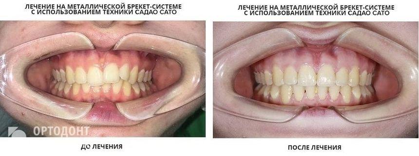 Лечение брекетами: до и после