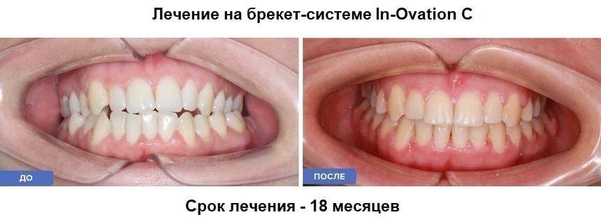 Лечение на брекет системе In-Ovation C: до и после