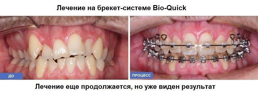 Лечение на брекет-системе Bio-Quick