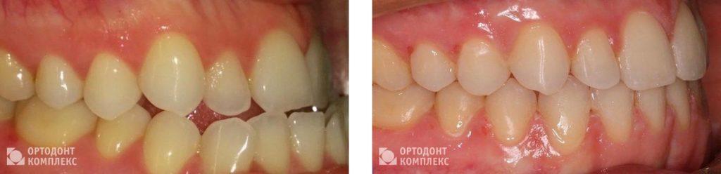 Лечение мезиальной окклюзии - фото до и после