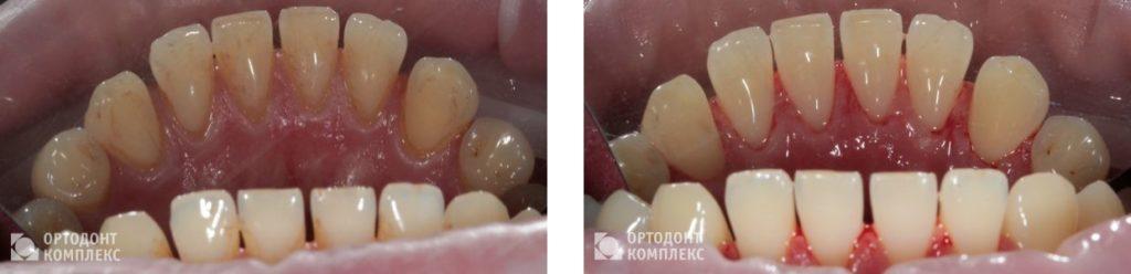 Профессиональная гигиена полости рта - фото до и после