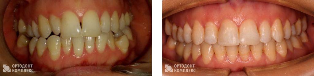 Лечение прикуса брекетами Damon Q - фото до и после