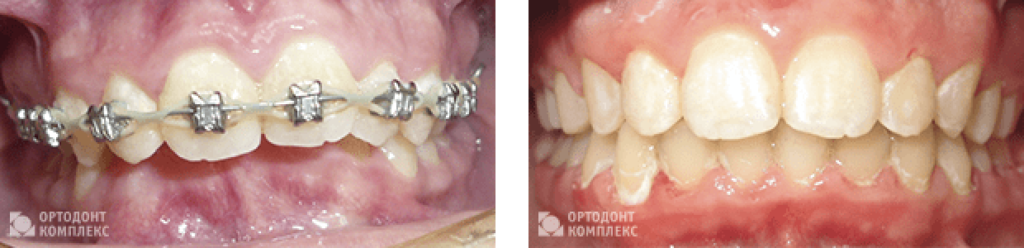 Before and after treatment on metal ligature braces