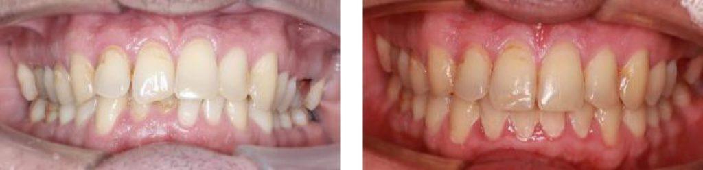 Лечение на брекетах In-Ovation C+R - фото до и после