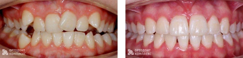 Лечение на In-Ovation metal - фото до и после