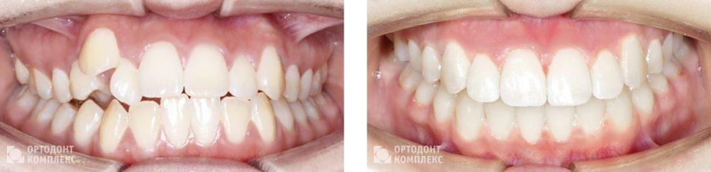 Лечение на брекет-системе Damon Clear - фото до и после