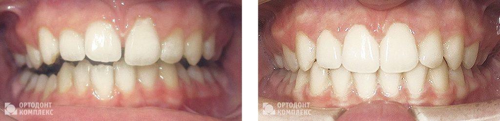 Лечение на брекетах «Win» - фото до и после