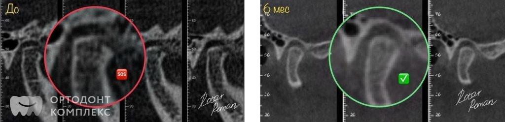 До и после лечения ВНЧС сустава
