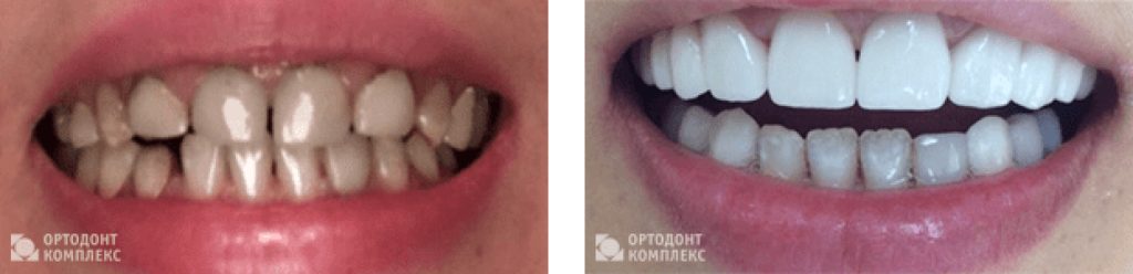 Photo before and after Emax all-ceramic crowns installation