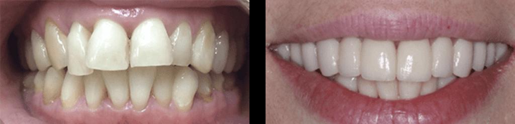 Коронки Emax - фото до и после