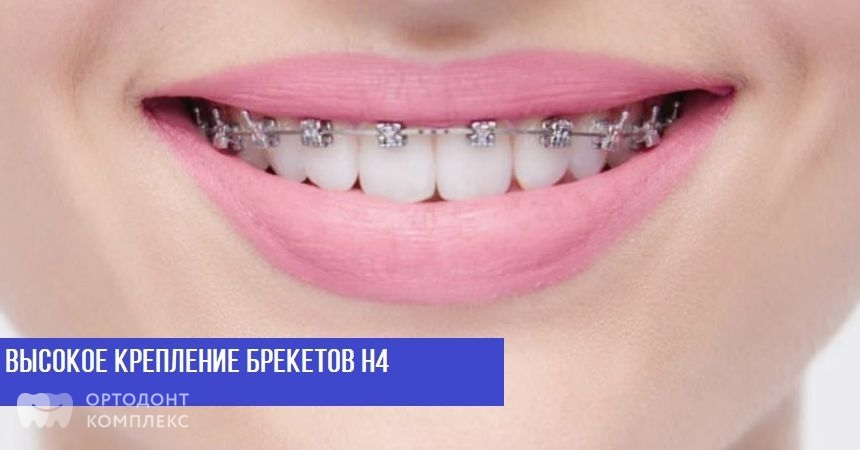 Брекеты Н4 на зубах