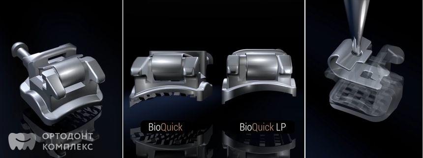 Брекеты Bioquick