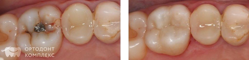 Художественная реставрация зубов - фото до и после