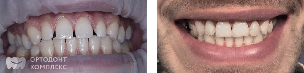 Коррекция улыбки - фото до и после