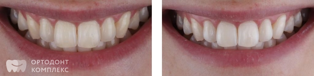 Отбеливание зубов Zoom4 - фото до и после