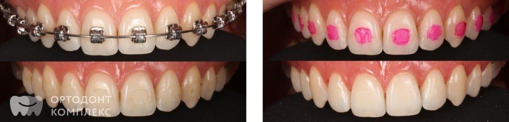 Снятие брекет системы - фото до и после