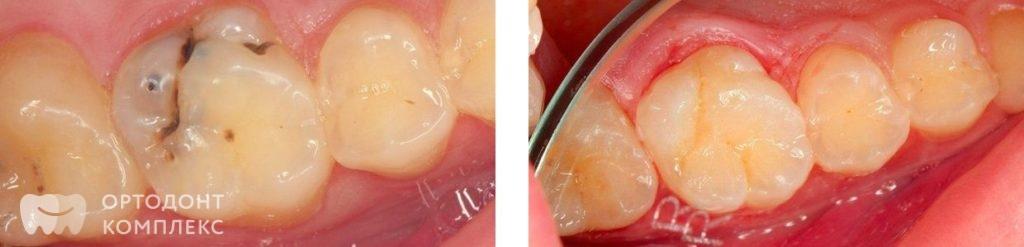 Лечение кариеса: фото до и после