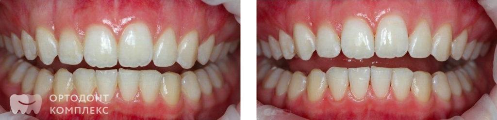 Удаление налета с потемневших зубов: до и после