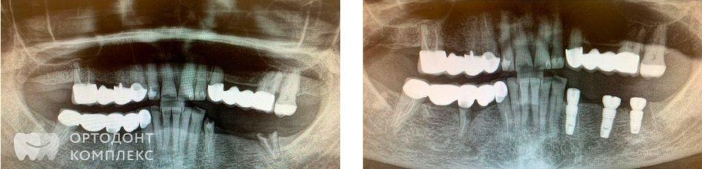 Протезирование на имплантатах фото до и после