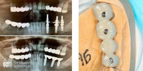 Установлены металлопластмассовые коронки с опорой на имплантаты