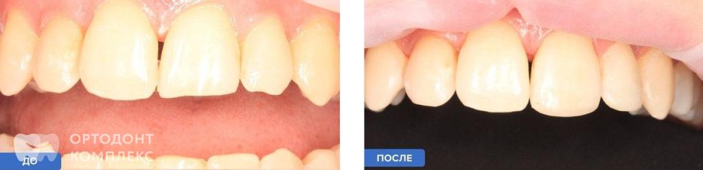 Реставрация зубов с подбором цвета