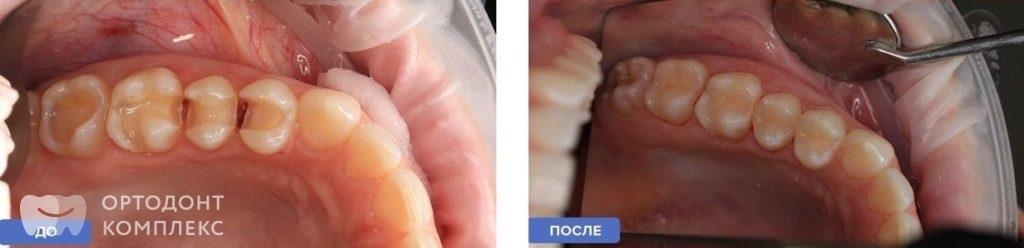 Установка керамических накладок: до и после