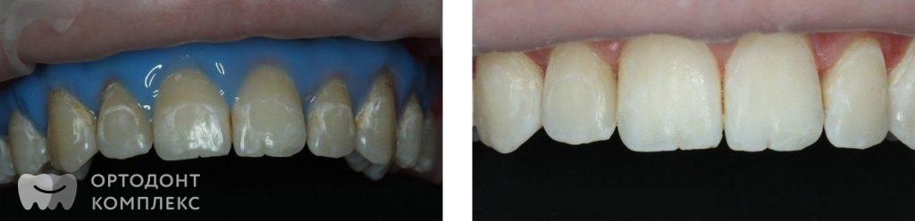 Технология ICON: до и после лечения