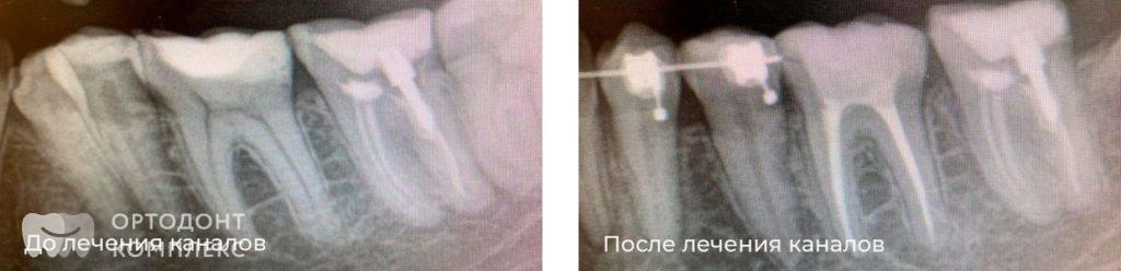 Лечение каналов зубов: до и после
