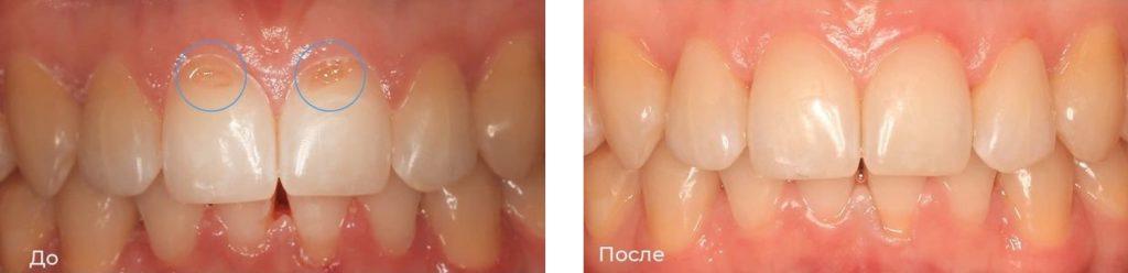 Лечение эрозии эмали зубов: фото до и после