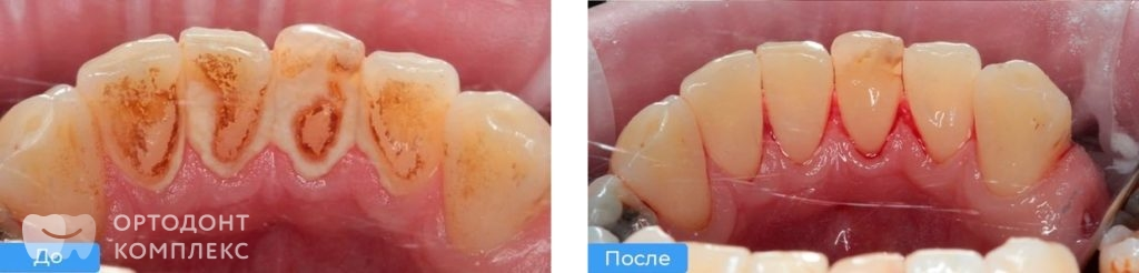 Профгигиена полости рта: фото до и после