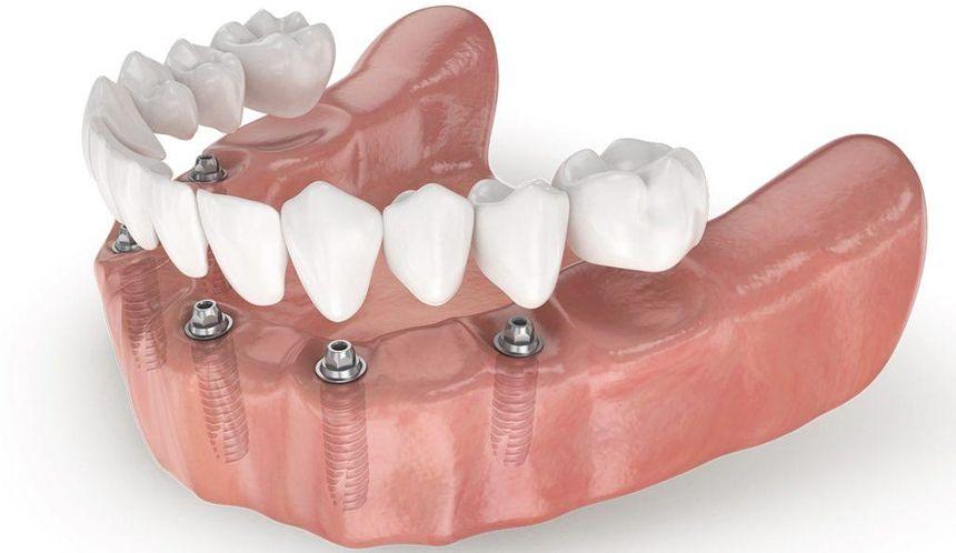 Имплантация на 6 имплантах