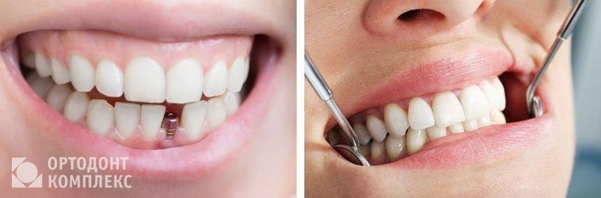 Протезирование зубов все на 6