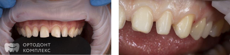 Установка виниров на передние зубы
